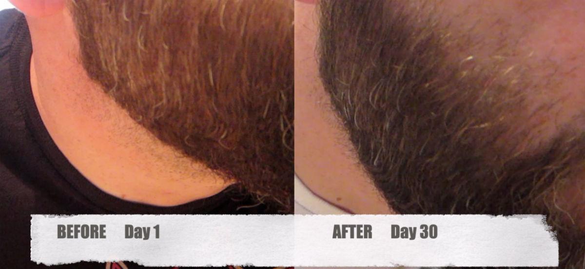 MY GRAY HAIR REVERSAL – UPDATE! Life Vitality Gray Hair Rescind